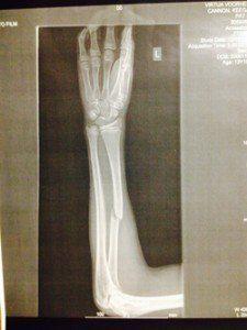 Keegan's Broken Arm